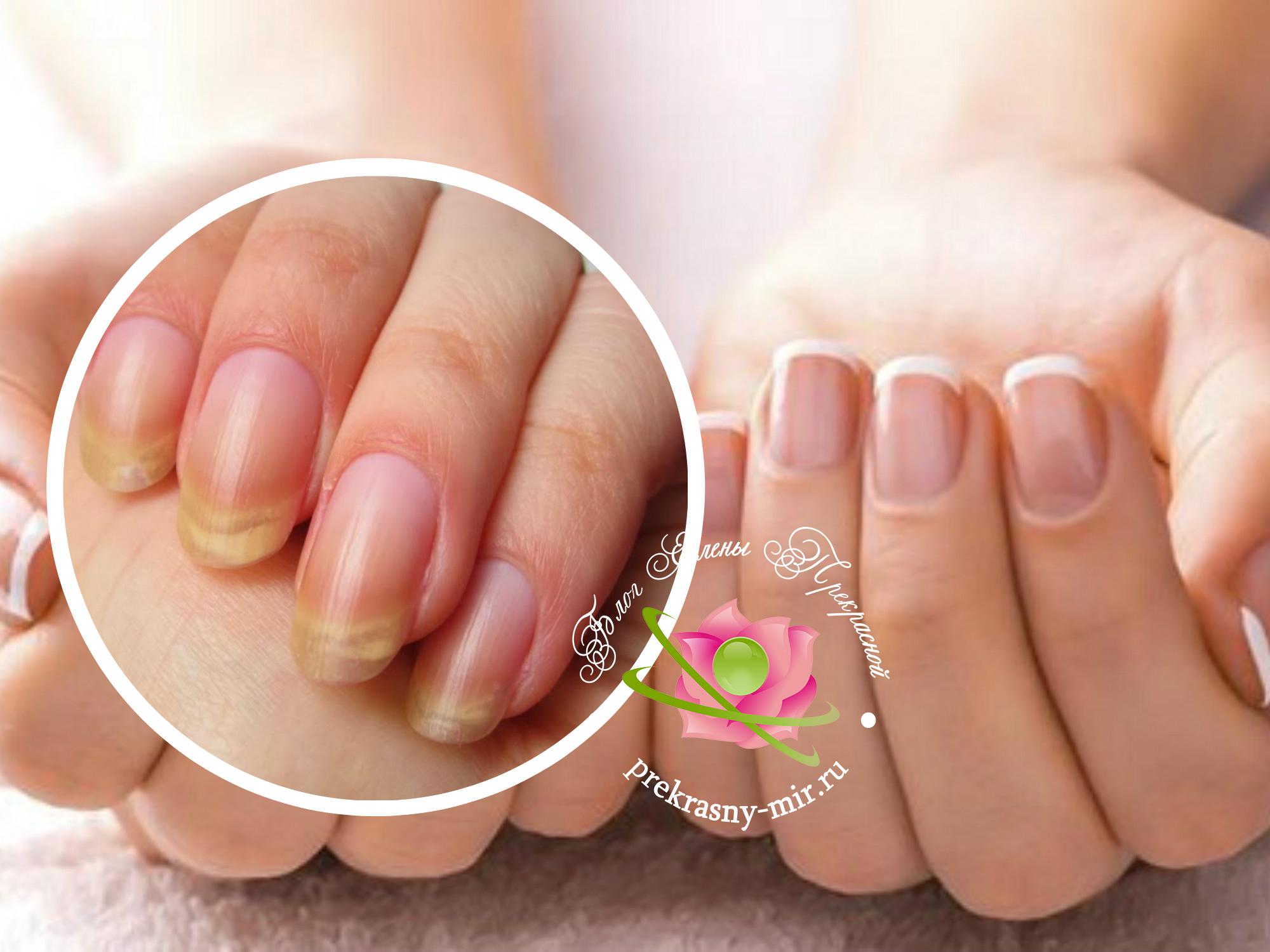 желтые ногти как вылечить